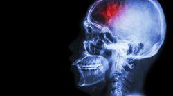 Así es como tu cerebro se vuelve adicto a la