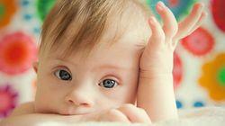 Un bebé con síndrome de Down rompe barreras en un