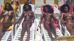 La 'marquinha', la peligrosa moda brasileña de tomar el sol con cinta