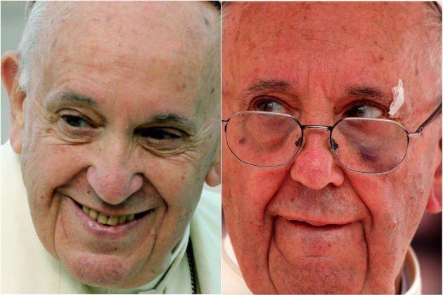 El papa Francisco se golpea con el papamóvil en la