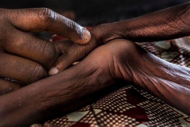 MSF lleva cabo un programa nutricional para niños como los de la imagen en el hospital de Gwange hospital,...