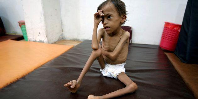 Marwan Ahmad Mahyoub, un niño desnutrido de 10 años, esperando a ser atendido en un hospital de Hodeidah,...
