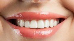 La OCU denuncia la ineficacia de las pastas dentífricas