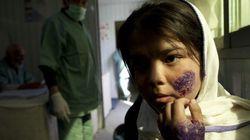 Leishmaniasis, la plaga milenaria que se ceba con los