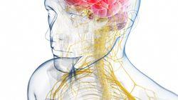 Cirugía contra la migraña: en qué consiste y qué efectividad