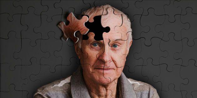 Alzheimer: la epidemia silenciosa del siglo