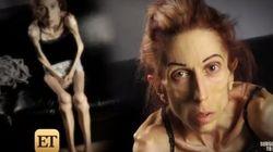 El desesperado llamamiento de una anoréxica para salvar su