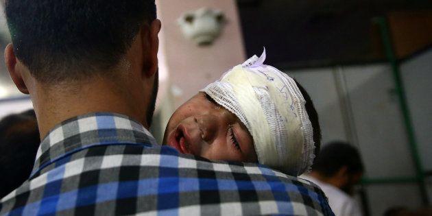 Un niño herido llora en brazos de su padre después de un bombardeo contra una zona rebelde sitiada en...