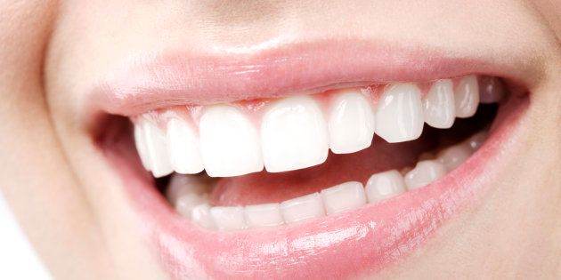 Blanqueamiento dental: las dudas más buscadas en