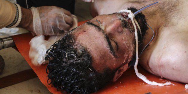 Un hombre recibe tratamiento médico tras el supuesto ataque con armas químicas en Jan Sheijun
