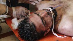 MSF confirma que las víctimas de Jan Sheijun presentan síntomas compatibles con un ataque
