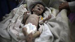 Se llamaba Sahar y la ha matado el hambre en un barrio asediado de