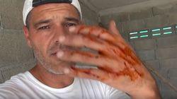 Frank Cuesta es atacado por una pitón en uno de sus
