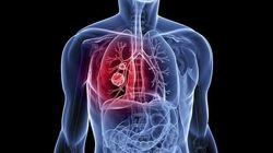 ¿Una muestra de ADN de la nariz podrá diagnosticar el cáncer de