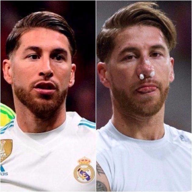 Así quedó el rostro de Sergio Ramos tras la patada de Lucas