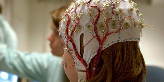 Epilepsia infantil: cosas que tienes que