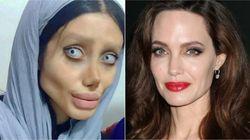 50 operaciones para ser como Angelina Jolie y termina pareciendo la novia