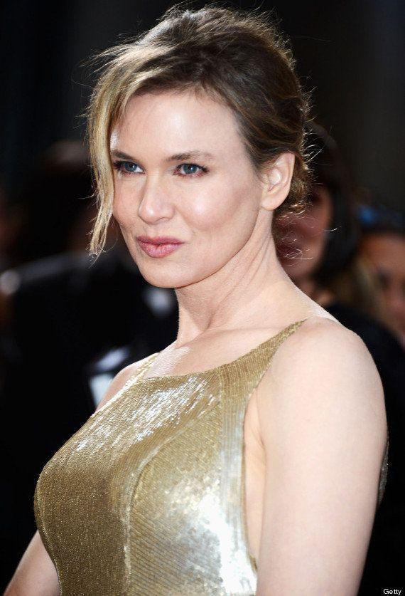 Renee Zellweger, ¿cara de botox?