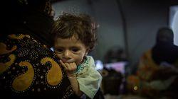 Un vídeo-puñetazo: las terribles imágenes de niños desnutridos en