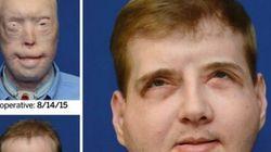 La increíble transformación de este bombero tras el trasplante de cara más