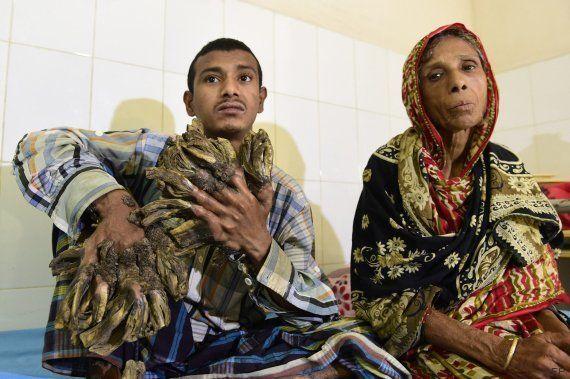 El 'hombre árbol' de Bangladesh supera con éxito su primera