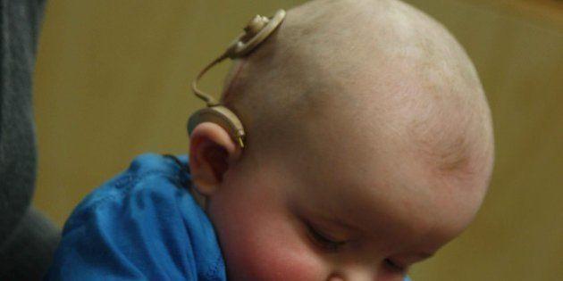 Los beneficios de poner dos implantes cocleares a los niños superan su coste, según un