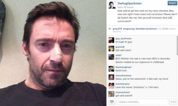 Hugh Jackman tiene cáncer de piel