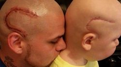 Se tatúa una cicatriz para apoyar a su hijo con