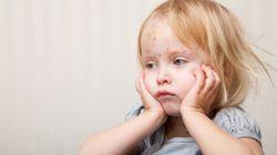 Varicela: ¿Pasarla de niño o