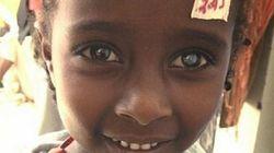 El doctor que cura la ceguera en África recibe 100.000 euros en