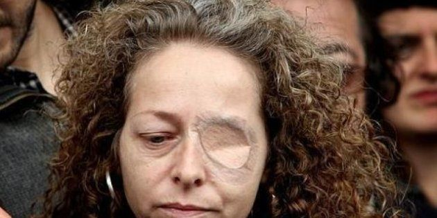 Imputados dos mossos por las lesiones de Ester Quintana, que perdió un ojo en una protesta (VÍDEO,