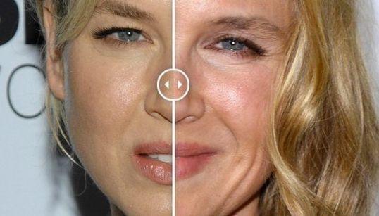 El antes y el después de Renee