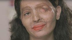 Esta joven fue atacada con ácido y ahora va a desfilar en la New York Fashion