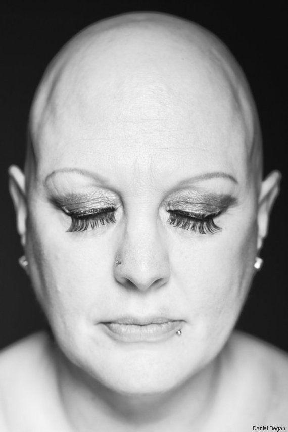 Impactantes fotos de personas con alopecia demuestran que la calvicie es