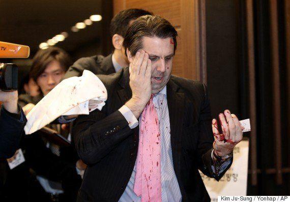 Un hombre armado con una cuchilla ataca al embajador estadounidense en Corea del
