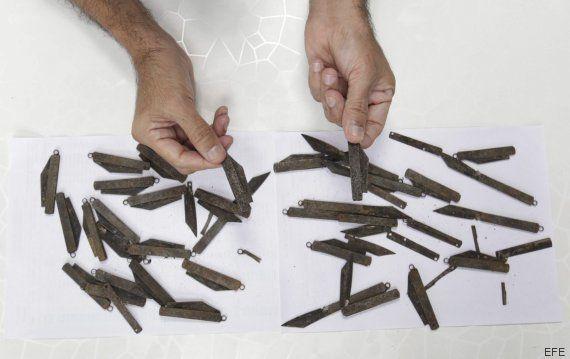 Cirujanos indios extraen 40 cuchillos del estómago e intestino de un