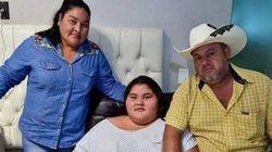 Operan con éxito en México a la adolescente más obesa del