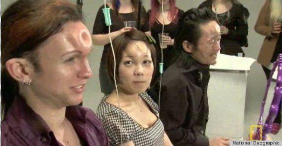 Bagelhead: Japón y la moda de inyectarse agua salada para deformarse la frente (VÍDEO,