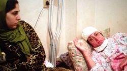 La refugiada siria podrá curar sus graves quemaduras en