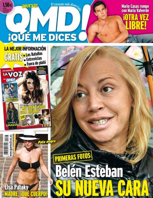 Vuelta a la televisión de Belén Esteban con nueva cara (VÍDEO,