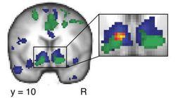 Facebook activa la misma zona del cerebro que el sexo, la comida o el