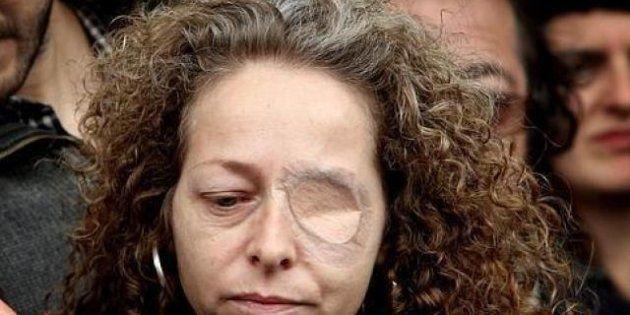 Absueltos los dos mossos acusados de reventar el ojo a Ester