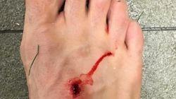 La respuesta de Suárez a la foto del pie de Filipe: