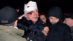 Un exministro ucraniano, en la UCI tras una agresión en una