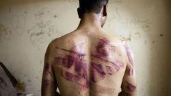 Periodista en Alepo, entre hambre y