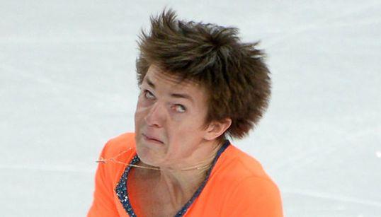 La otra cara del patinaje artístico