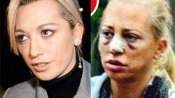 Segunda operación de Belén Esteban: su evolución estética