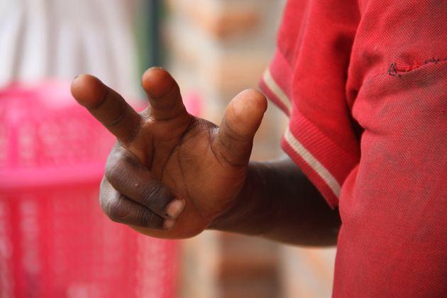 Burundi: cuando ser niño no es