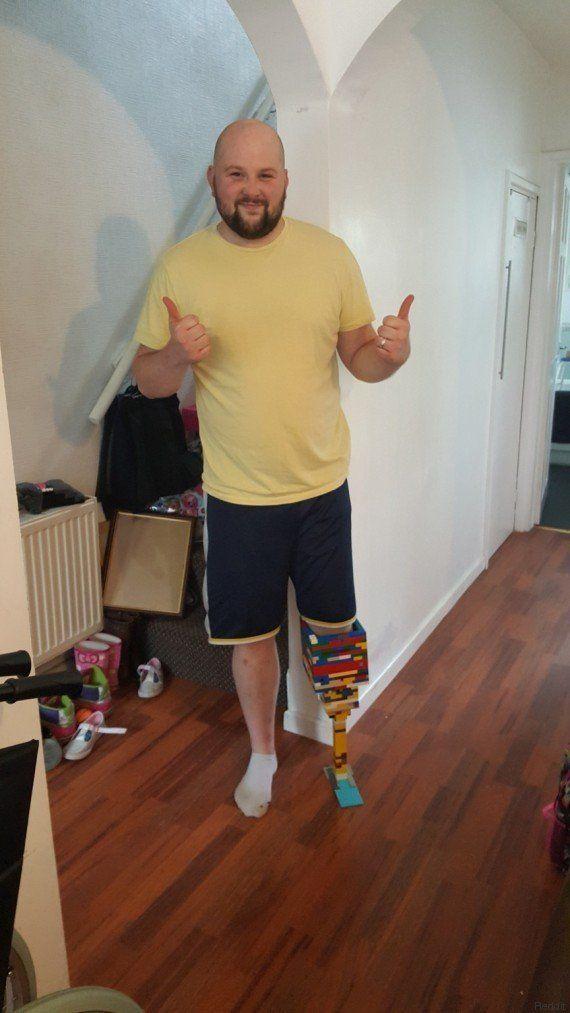 Matt Cronin, el hombre que construyó su prótesis... con piezas de