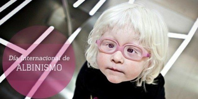Día Internacional del Albinismo: curiosidades sobre esta alteración